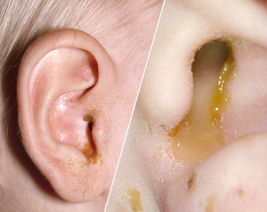 Outer view of yellow discharge from an infected ear